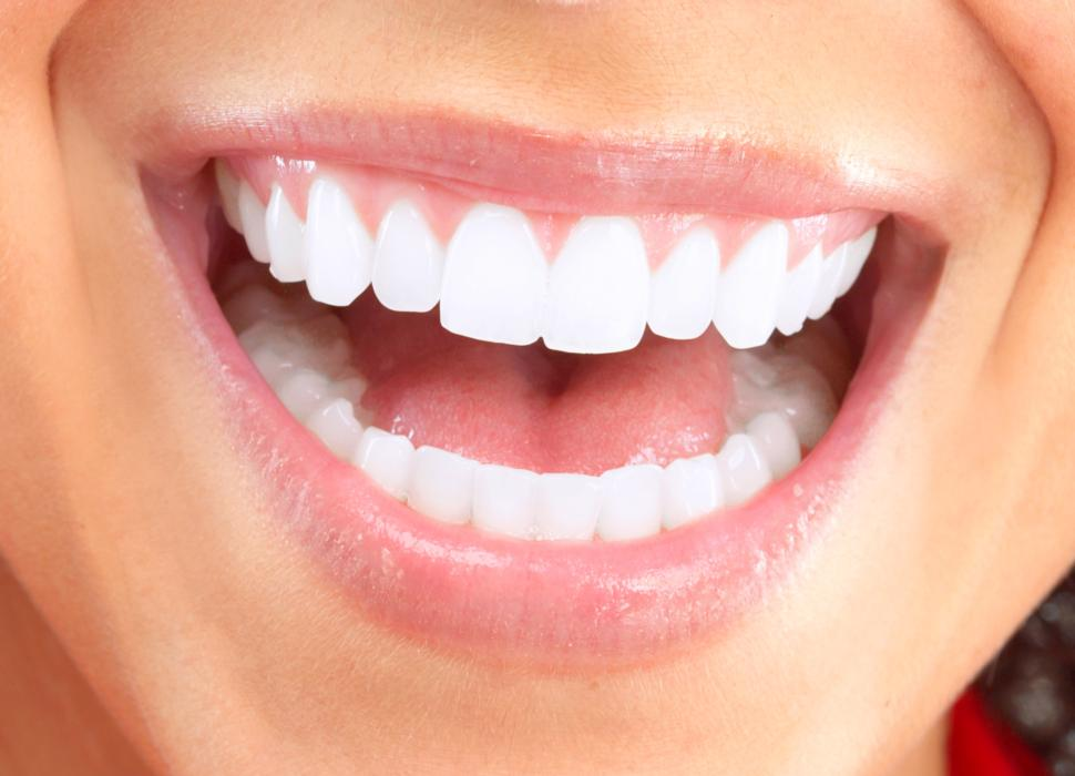 Teeth Whitening Questions and Answers